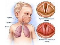 Лечение крупа у ребенка