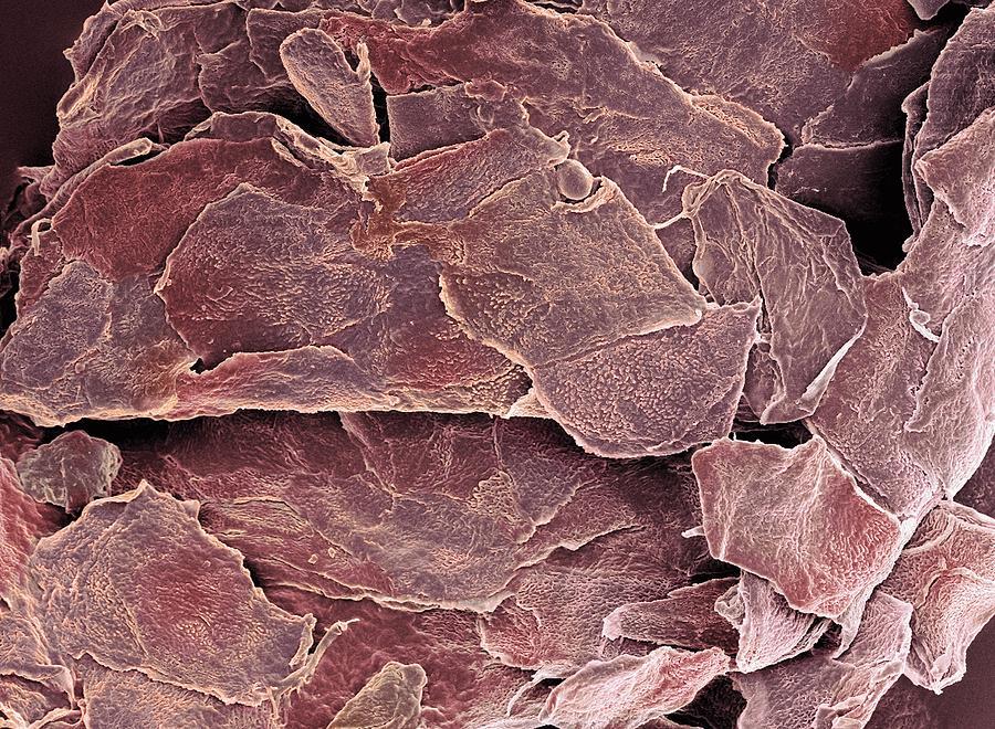 Псориаз — хроническое рецидивирующее иммуноопосредованное системное заболевание