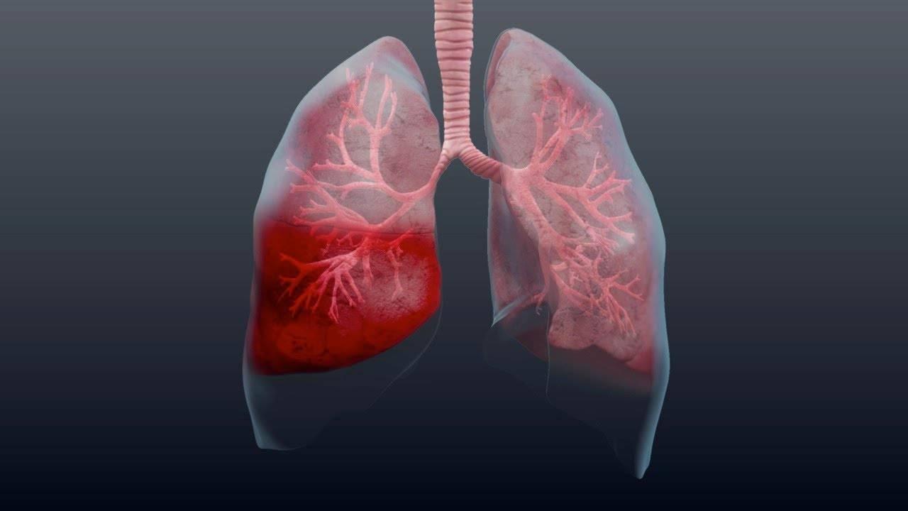 Что есть пневмония
